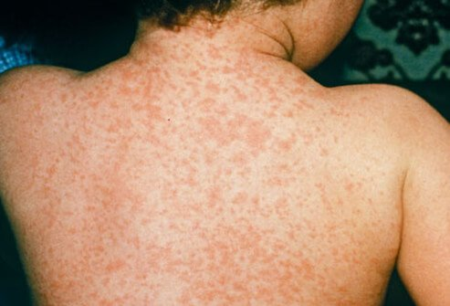 Measles rash.