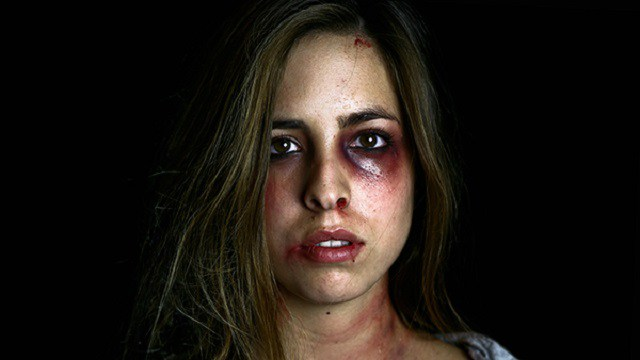 A battered woman with bruised to her eyes mouth and neck.